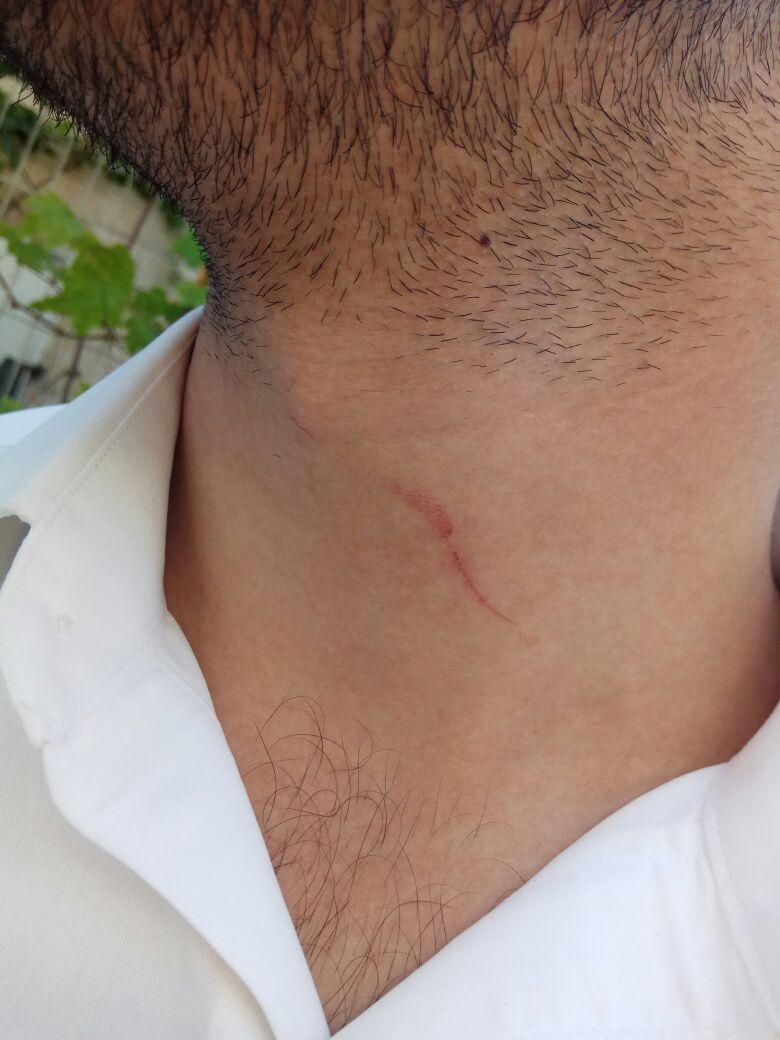 תקף בסכין, איים לפגוע ברבנים ונעצר