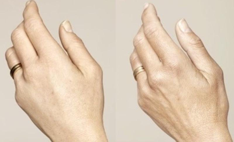 פיסול פנים בשיטה הוליסטית -  8 פתרונות למניעת הזדקנות העור