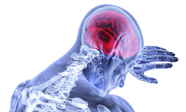 רשלנות רפואית באבחון ובטיפול בשבץ מוחי